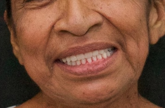 Acción de Prótesis Dentales 2020